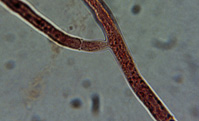 Hyphae Crosswalls and 90° Branching